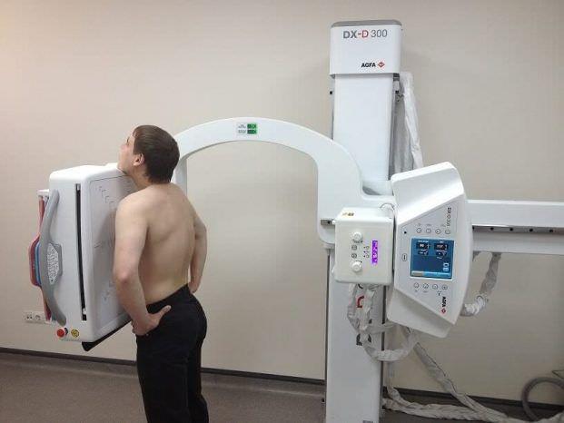 Рентгенологічне дослідження при виразці шлунка і дванадцятипалої кишки