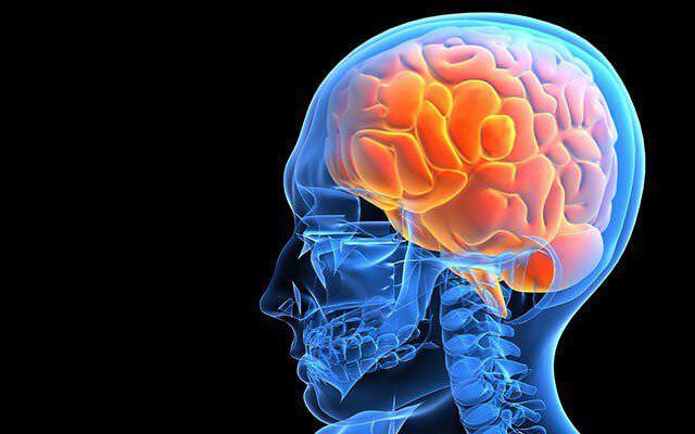 Набряк мозку