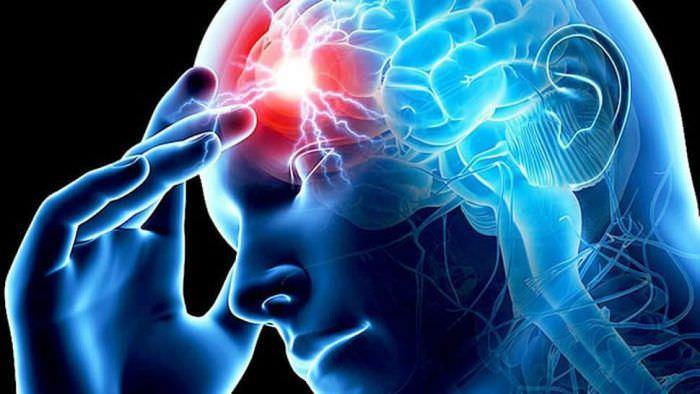 Інсульт. Причини, симптоми, види та лікування інсульту