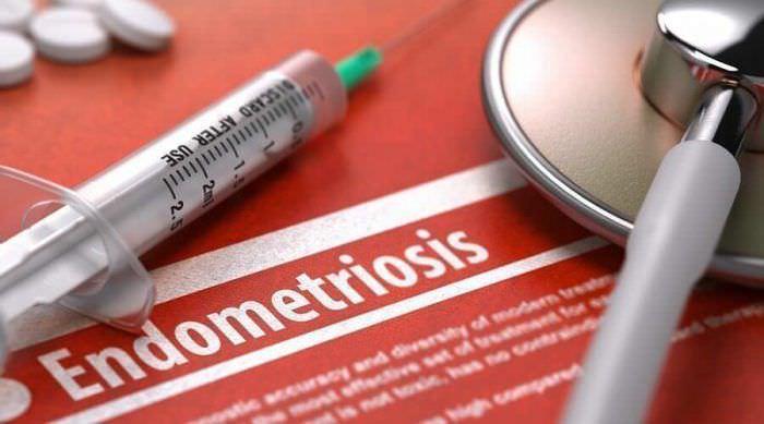 Ендометріоз: форми, лікування, причини, симптоми, діагностика
