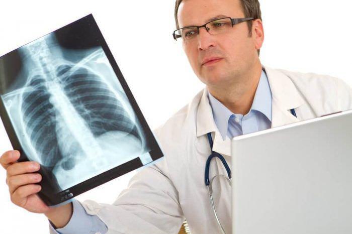 Туберкульоз кісток