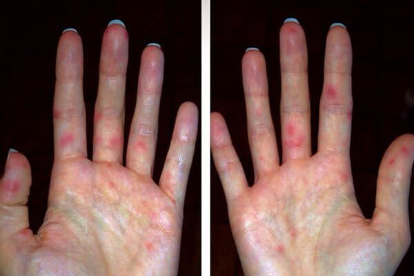 ентеровірусна інфекція висип