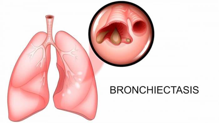 Бронхоектатична хвороба