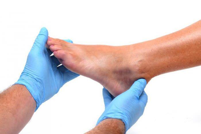 Поява синців після травми: коли потрібен лікар