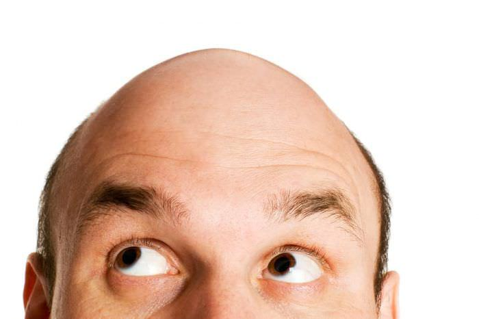 Алопеція: причини, симптоми, як відновити волосся?