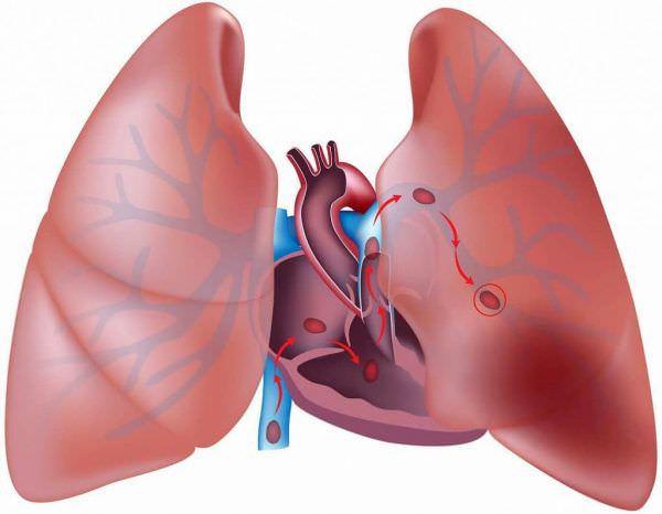 Тромбоемболія легеневої артерії
