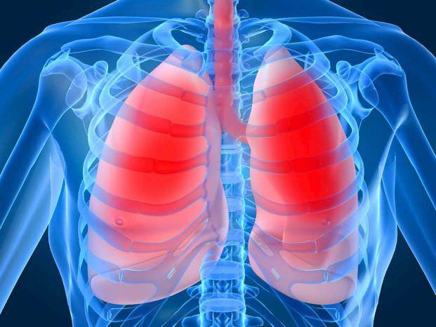 Емфізема легень