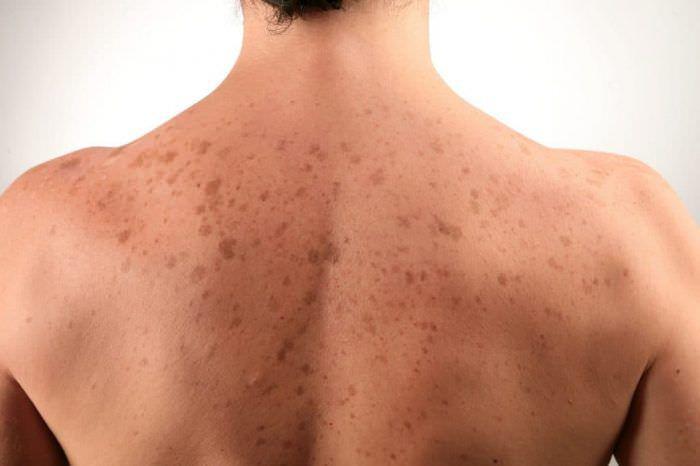 Висівкоподібний лишай (різнокольоровий лишай) - це дерматологічне захворювання грибкового походження (кератомікоз). Характеризується появою на шкірних покривах плям різного розміру і забарвлення: жовтих, коричневих або рожевих. Назва патології обумовлено специфічним лущенням при пошкрябуванні висипань. У цьому випадку від шкіри відокремлюються лусочки, з вигляду нагадують висівки злаків. Збудниками цього виду лишаю є кілька різновидів патогенних грибків. При інфікуванні вони вражають тільки поверхневий, роговий шар, викликаючи зміну його забарвлення і розпушення. Діагностика полягає в проведенні серії спеціальних тестів, лікування проводиться місцеве, з використанням протигрибкових засобів. Причини Патологічні зміни поверхневого шару шкіри розвиваються в результаті його інфікування грибами Pityrosporum orbiculare і ovale, Malassezia furfur. Саме по собі захворювання не відрізняється високою контагіозністю, тобто передається при дуже тісному контакті. Але навіть в цьому випадку заразитися можна тільки при наявності певних чинників. Зараженню сприяють: ● ослаблення імунітету; ● руйнування природного захисного бар'єру шкіри за рахунок частого використання гігієнічних засобів з антибактеріальним ефектом (лосьйонів, мила і т. д.); ● підвищене відділення поту або зміна його хімічного складу; ● порушення ендокринного походження, до яких відносяться ожиріння, цукровий діабет; ● надлишок ультрафіолету, який надає стресовий вплив на шкірні покриви. В ході деяких досліджень причин виникнення висівкоподібного лишаю було встановлено взаємозв'язок цього Кератомікозу з туберкульозом легень і лімфогранулематоз. Симптоми Основна і єдина клінічна ознака захворювання - плями на шкірі. Їм властивий ряд характеристик, що дозволяють визначити саме цей різновид лишаю. При огляді висипань потрібно звернути увагу на наступні параметри: 1. Колір. Висівкоподібний лишай має другу назву - різнокольоровий, оскільки вогнища ураження можуть бути пофарбовані дуже різноманітно. Найбільш поширені жов