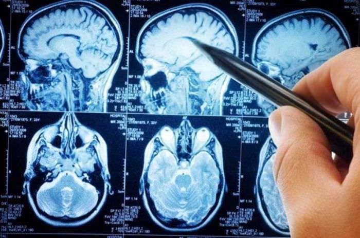 Церебральний атеросклероз