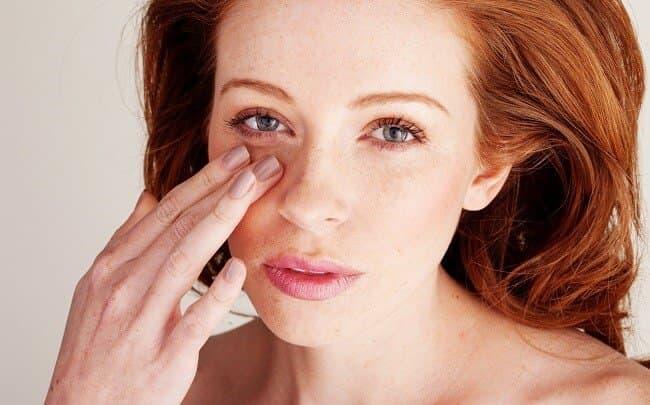 Як швидко вилікувати ячмінь на оці в домашніх умовах?