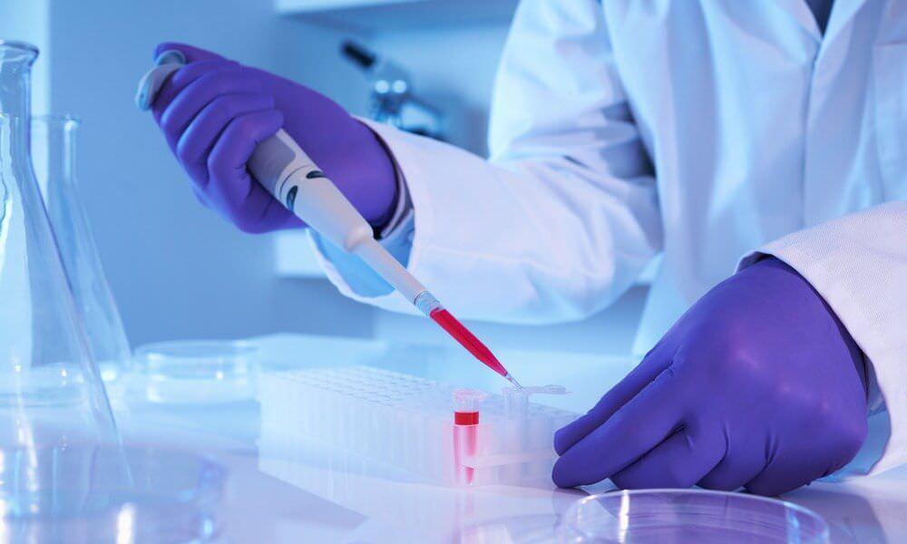 Що показує біохімічний аналіз крові і як він проводиться?