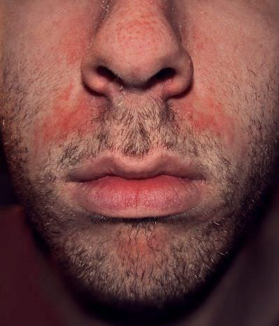 Эксфолиативный дерматит: определение, причины, лечение