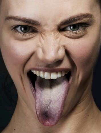 Чорний язик