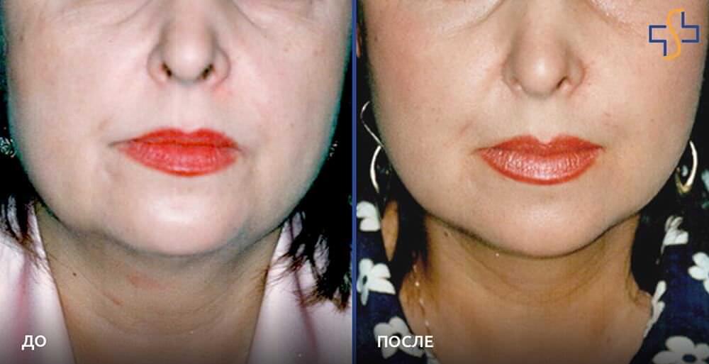 фото до/после проведённой подтяжки лица