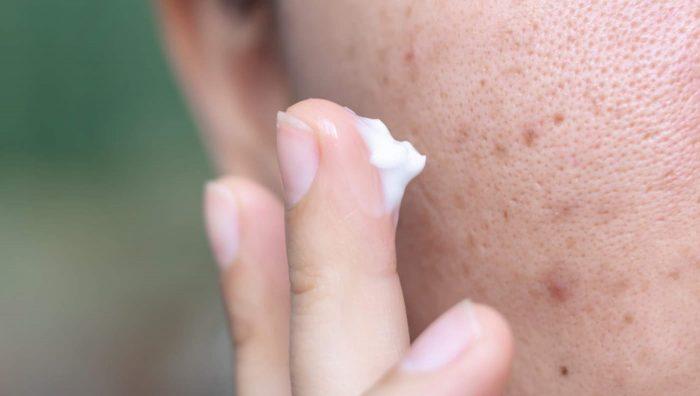 Як позбутися від пігментних плям на обличчі
