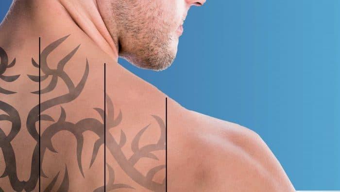12 нюансів, які ви повинні знати перед видаленням татуювання