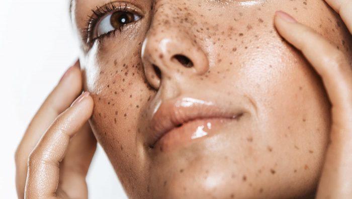 Пігментація шкіри, як позбутися від пігментних плям на тілі в літній період
